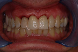 AFTER - 3 New All Ceramic Crowns