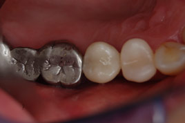 AFTER - Implant and Crown on Same Day