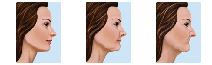 dental-aging