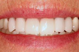 AFTER - Old Discolored Restorations