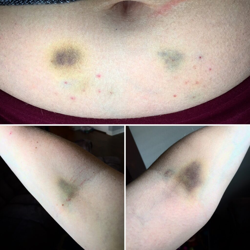 Bruising on belly and arms from IVF shots and blood draws. Why I don't want to forget what it's like to struggle with infertility.