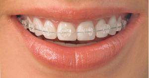 Clear braces image