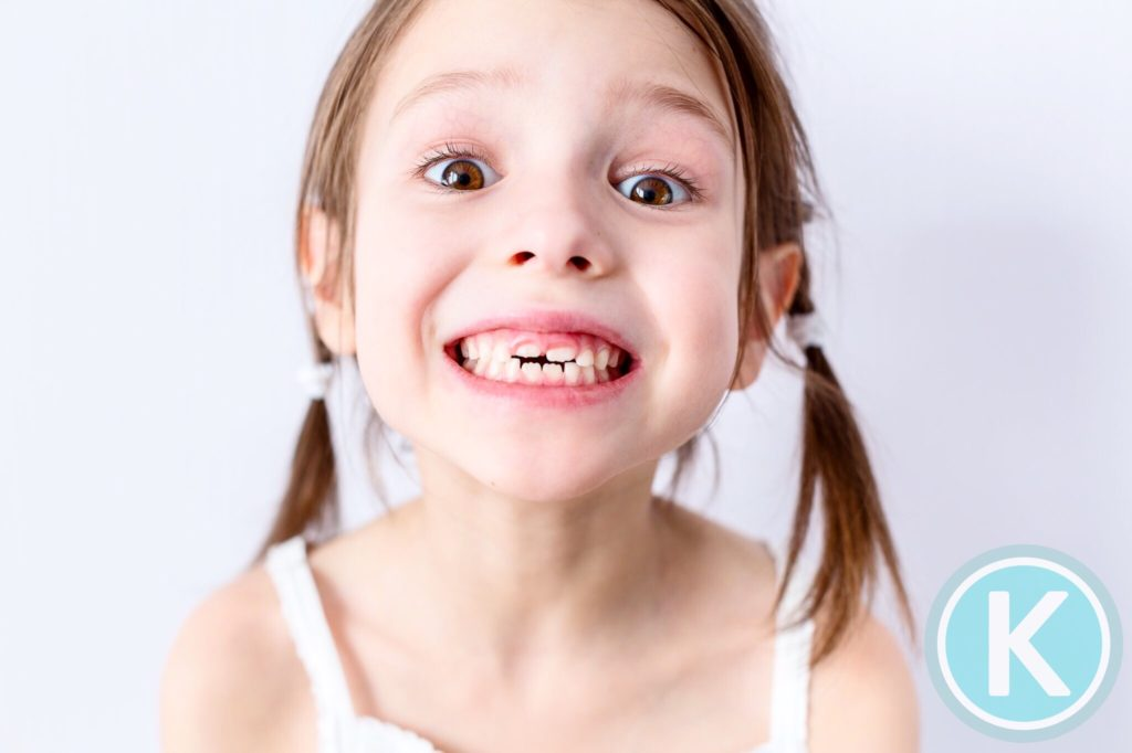 early intervention timing evaluation by kragor orthodontics