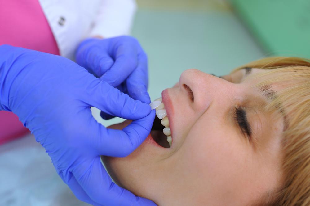 Dental Veneer Solutions around Upper Darby, Ardmore