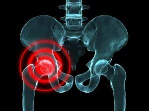 hip-pain-Phoenix-Arizona- Pain Specialist-acupuncture-