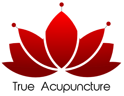 True Acupuncture Phoenix Arizona – Best Acupuncture