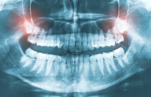 wisdom teeth removal bressler pa