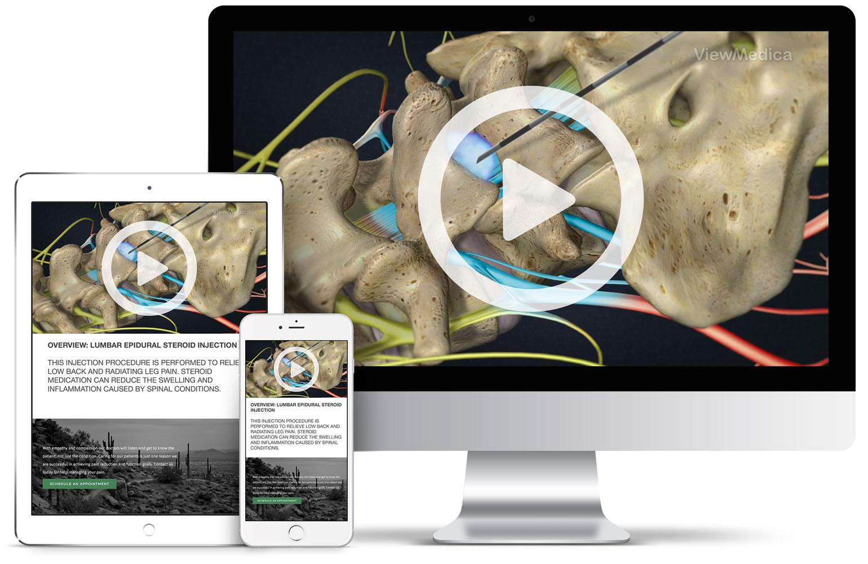 Patient Videos