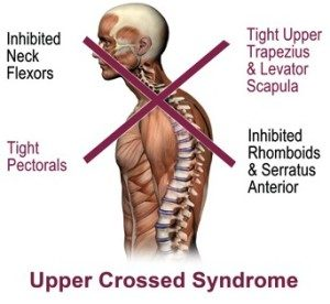 Upper Crossed Syndrome involves inhibited neck flexor muscles, inhibited rhomboids, serratus anterior and lower trapezius muscles, tight pec muscles and tight upper trapezius and levator scapula muscles.