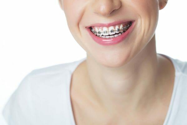 Metal Braces on Smiling Teeth