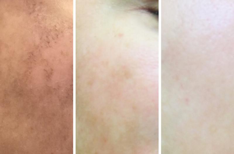 941_Facial Acu-mesotherapy