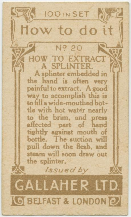 Life hack: removing a splinter