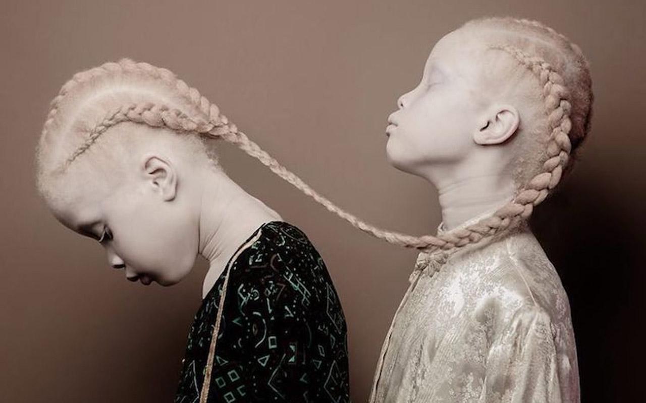 Vinicius Terranova, Photography, Albino, Albinism, beauty