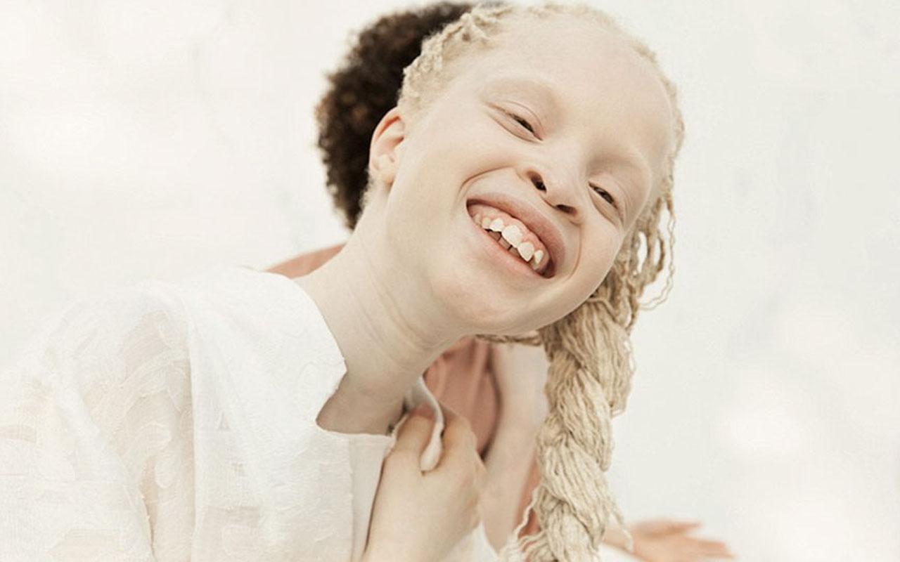 albino, black, white