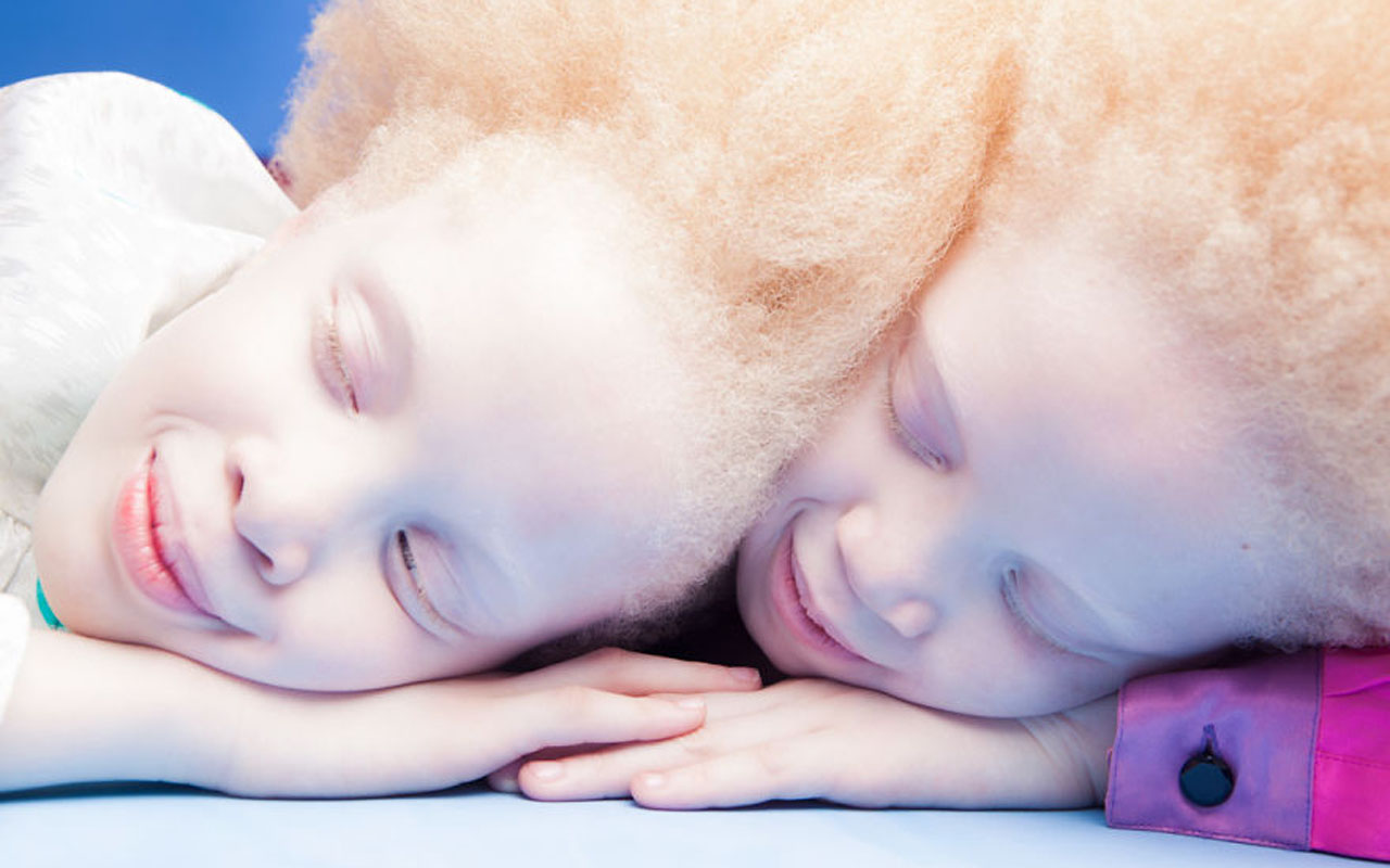 Vinicius Terranova, albino, girls, twins