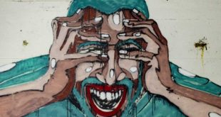 Migraines, fact, facts, people, life, society, medical