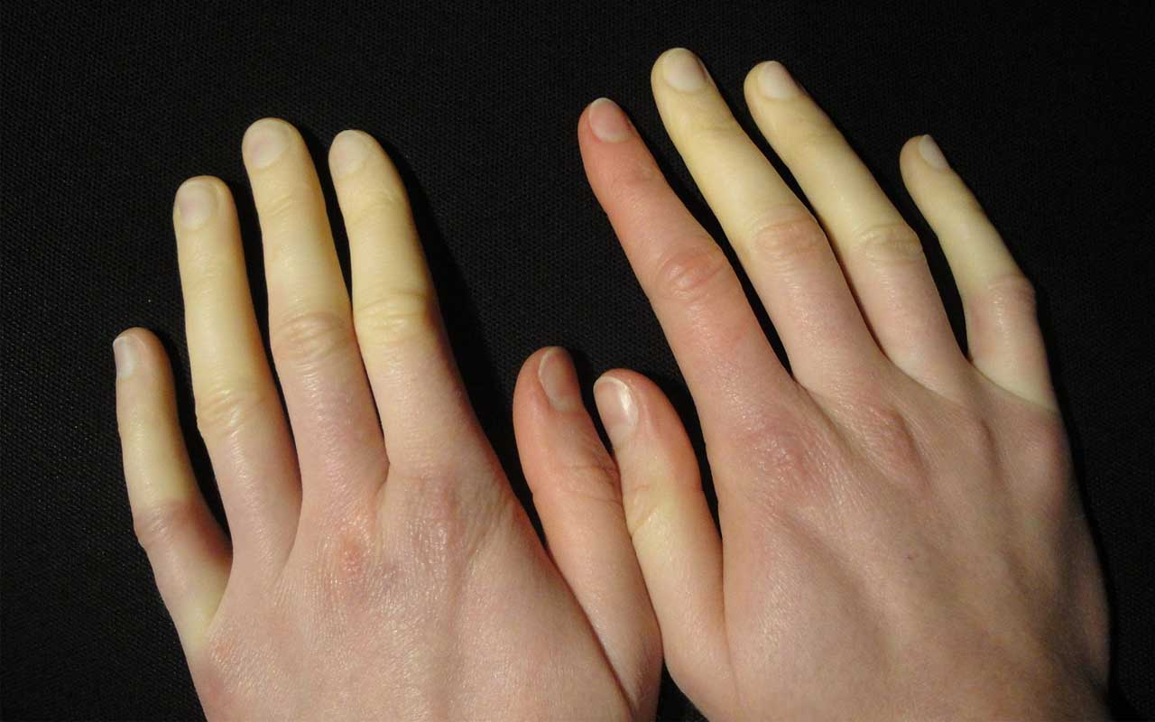 Raynaud's Phenomenon, people, facts, life