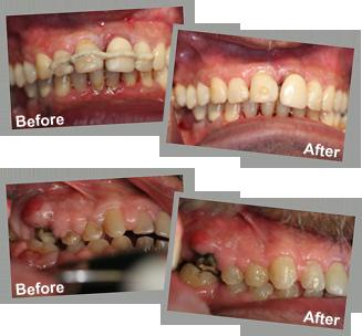 Patient Before and After Laser Gum Surgery, LANAP Gum Laser Procedure