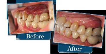 Laser Gum Surgeon, Periodontist Dennis E. Winson, DDS