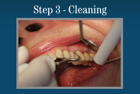 Step 3 - Painless Laser Gum Surgery