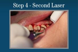 Step 4 - Painless Laser Gum Surgery