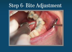 Step 6 - Painless Laser Gum Surgery