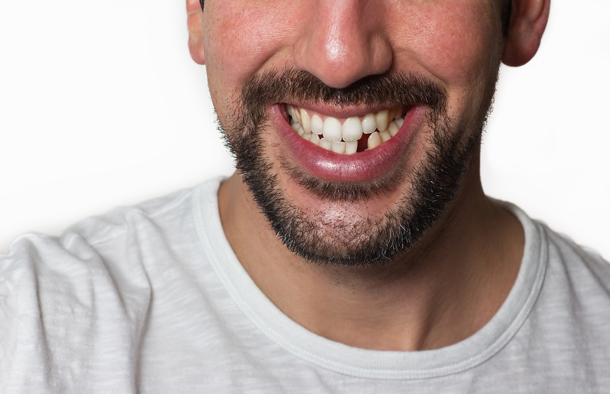 Got A Missing Tooth?
