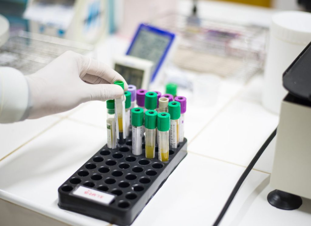 Crime Lab Analysis is an absolute must to prove that the drugs are really what the prosecutor states they are.