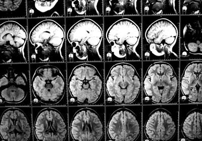 brain injury exam