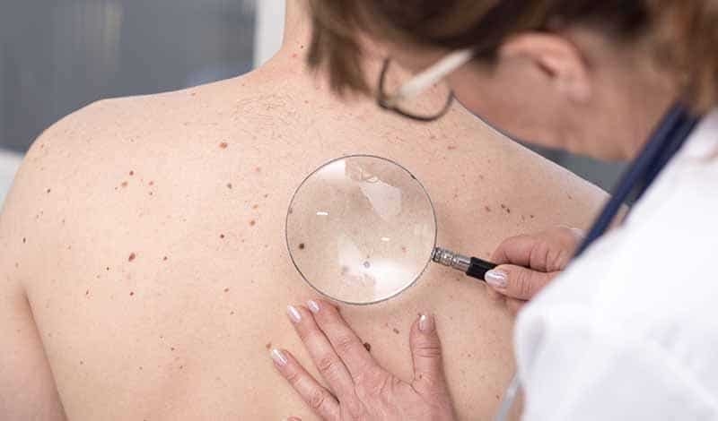 Learn more about skin cancer