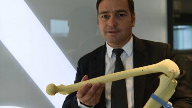Photo of ابتكار أول ركبة صناعية من طباعة الخلايا الحية