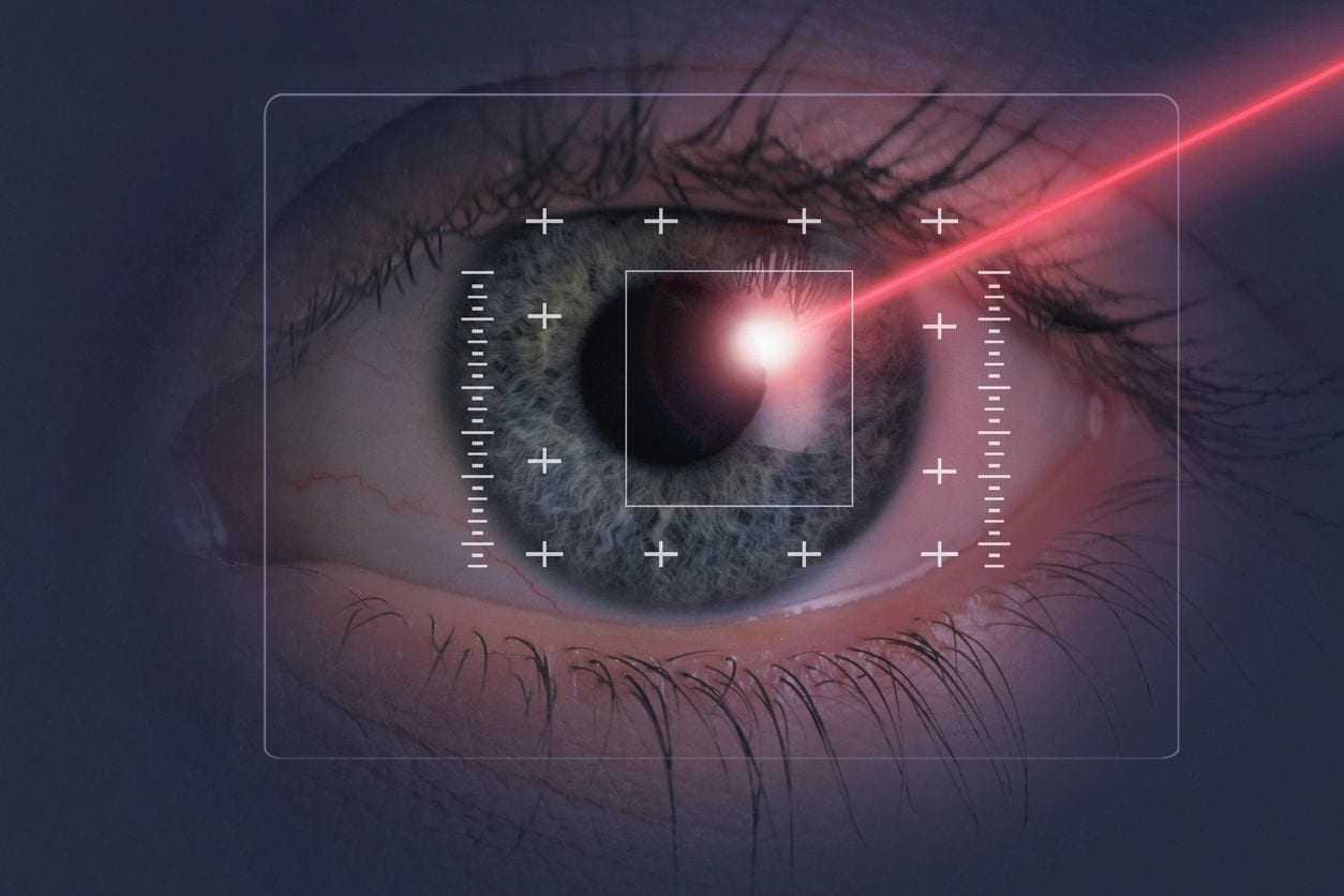 Patient's Guide To Laser Eye Surgery