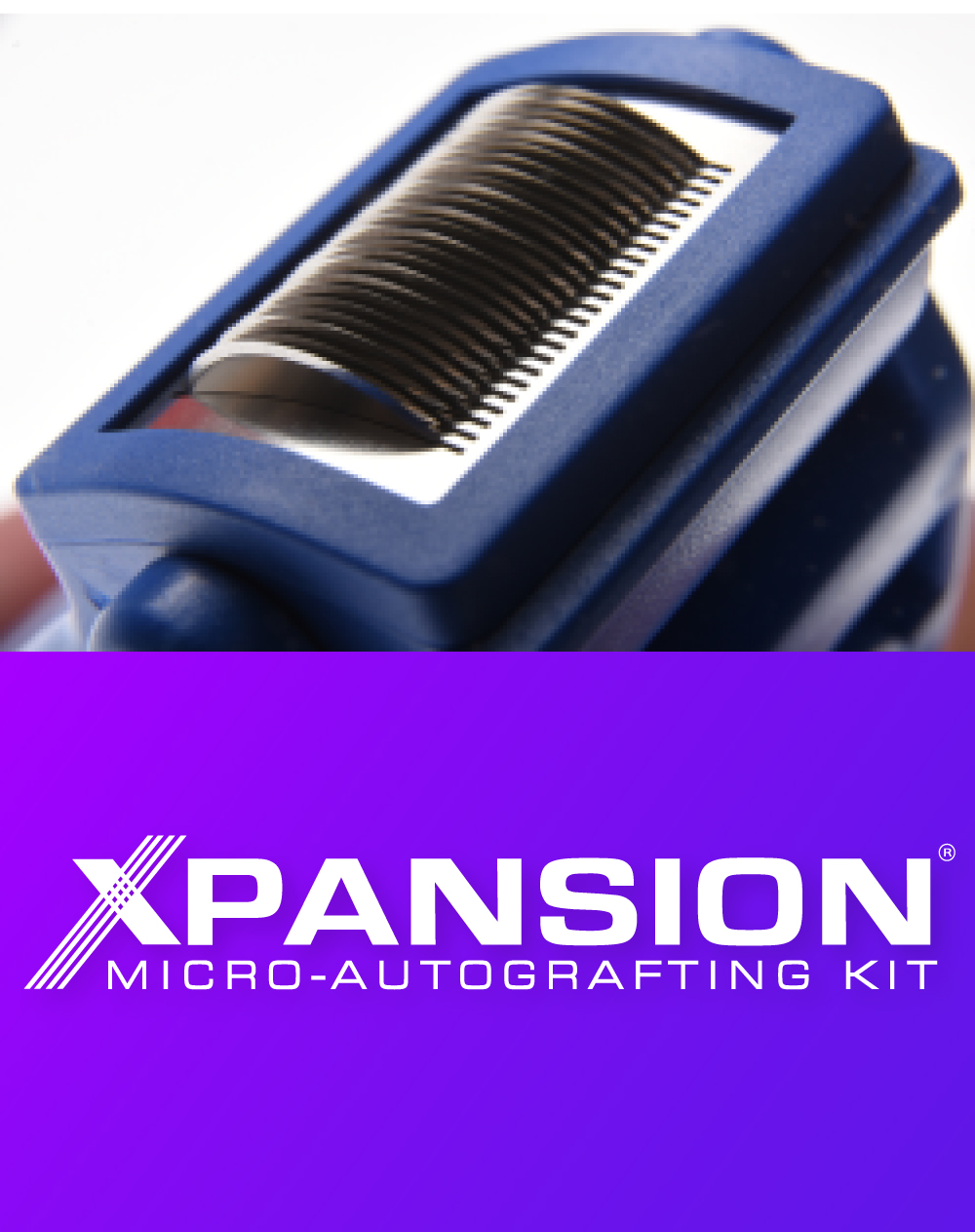 Xpansion Micro-Autografting Kit