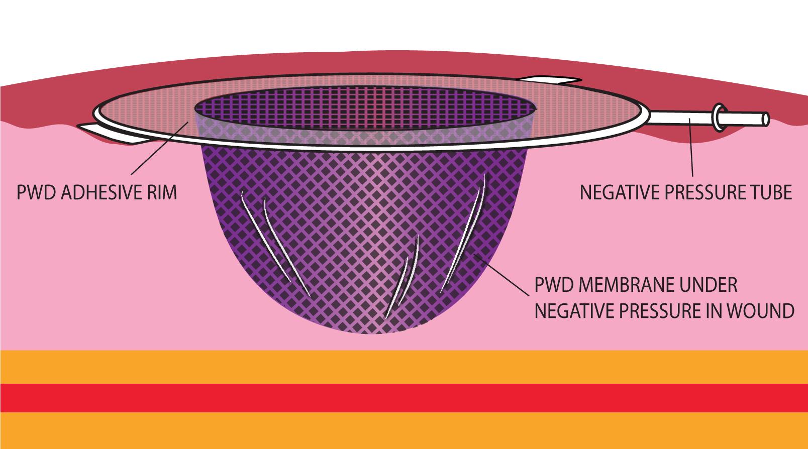 Advancing Negative Pressure Wound Therapy