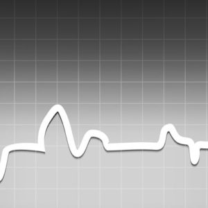 Image of a black-and-white electrocardiogram screen