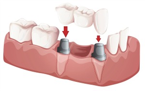 Dental bridge illustration of a traditional bridge comprised of two abutments and one pontic
