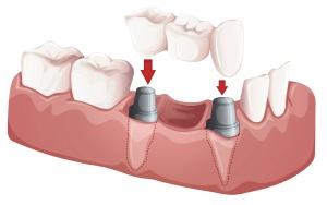 Dentistry for the Entire Family Dental Bridge Illustration