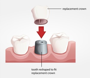 Dentistry for the Entire Family Dental Crown Illustration
