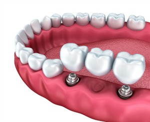 Dentistry for the Entire Family Dental Implants Supported Bridge