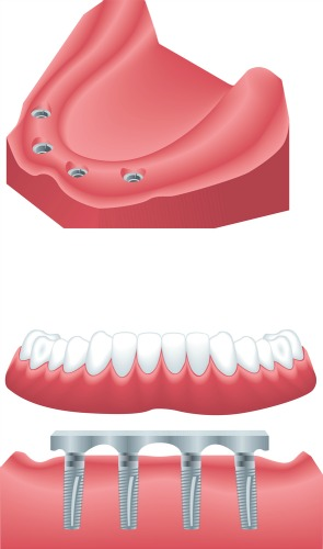 Dentistry for the Entire Family Dental Implant Supported Denture