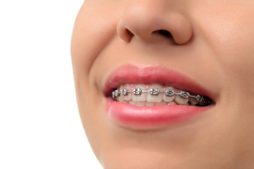 Traditional metal dental braces at Dentistry for the Entire Family