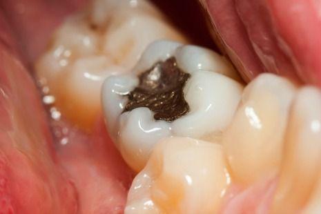 Amalgam dental filling picture