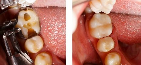 Composite dental filling procedure