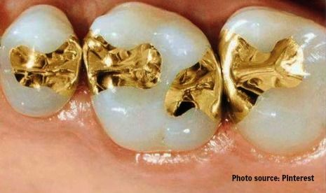 Gold dental fillings picture
