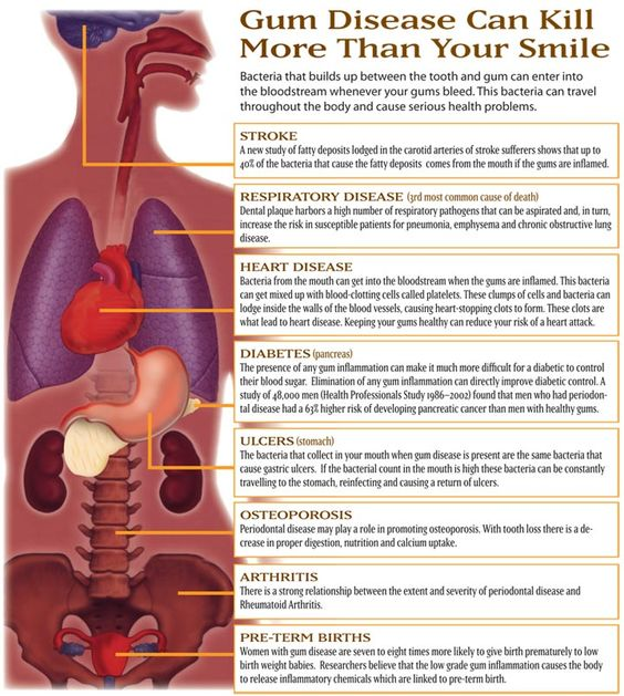 Gum disease impacts the entire body, not just the mouth