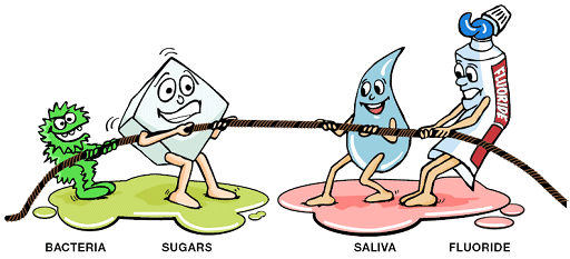 Illustration how a dental cavity forms