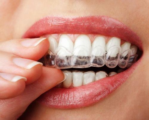 Teeth Grinding Mouthguard