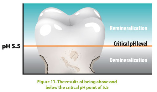 Tooth enamel demineralizes when mouth pH drops below 5.5