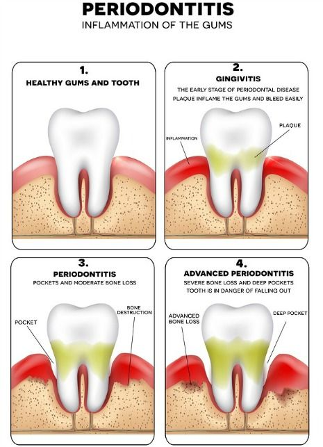 Diabetes increases risk for gum disease