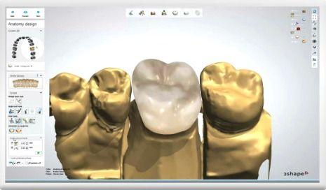 Trios CAD design